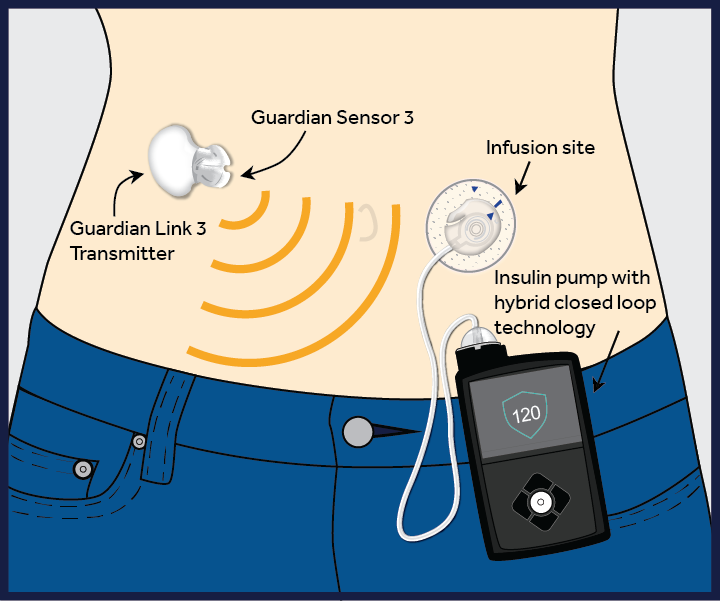 sursa imaginii http://www.medtronicdiabetes.com/blog/introducing-the-minimed-670g-system/