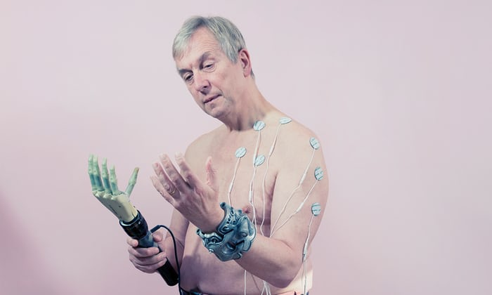 sursa imaginii https://www.theguardian.com/technology/2017/oct/29/transhuman-bodyhacking-transspecies-cyborg